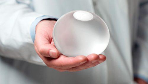 doctor sosteniendo un balón intragástrico
